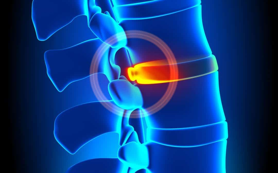What to Know About Having a Bulging Disc